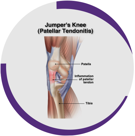 Patella Tendinopathy