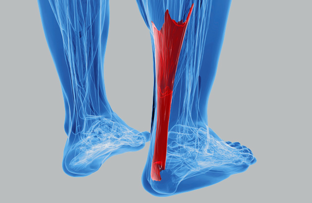 Achilles Tendinopathy Treatment