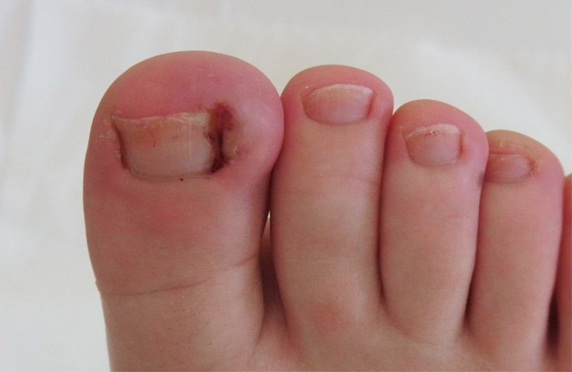 ingrown-toenail_630x410