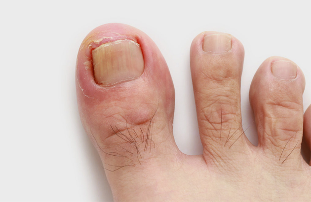 Ingrown-Toenail-630x410