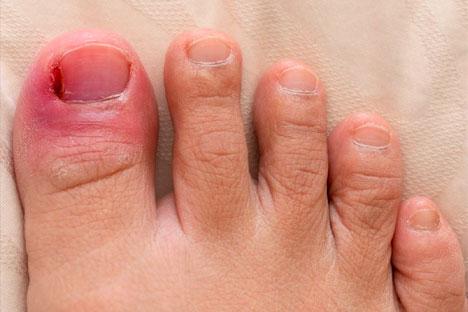 ingrown-toenail