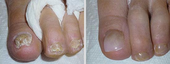 keryflex-nail-restoration-2